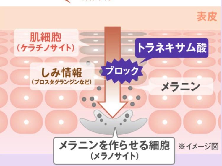 トラネキサム酸効果